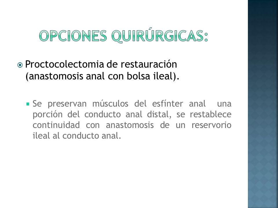 Proctocolectomia de restauración (anastomosis anal con bolsa ileal). Se preservan músculos del esfínter anal una porción del conducto anal distal, se