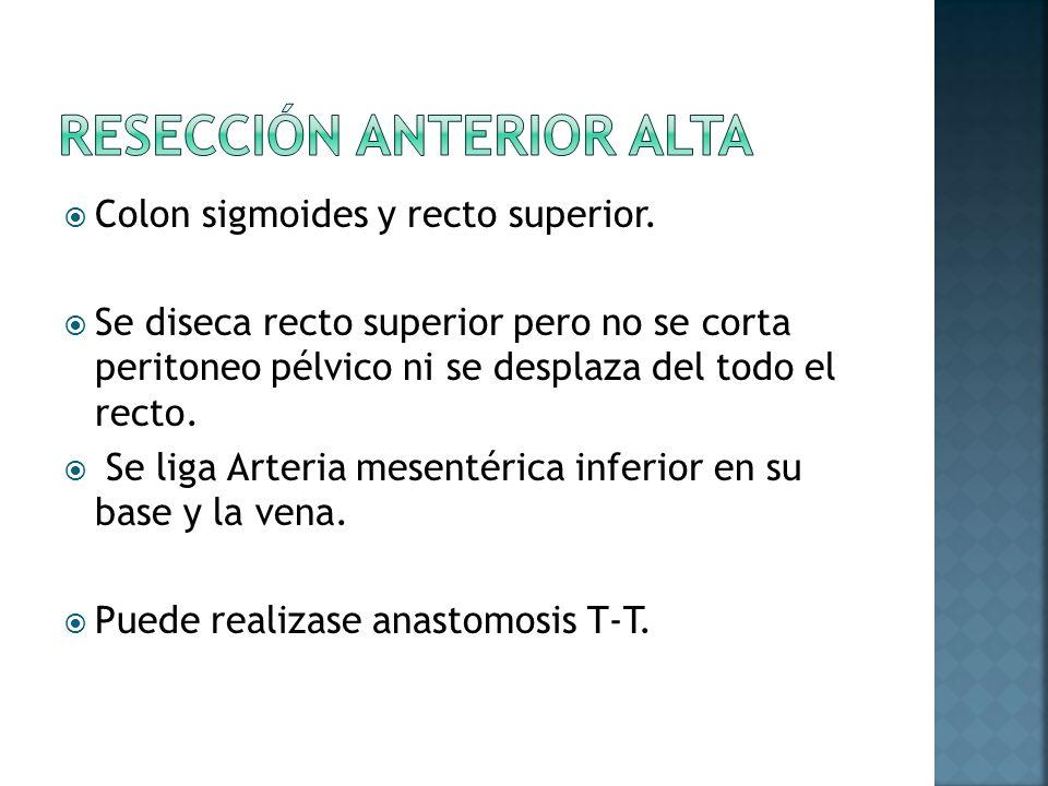 Colon sigmoides y recto superior. Se diseca recto superior pero no se corta peritoneo pélvico ni se desplaza del todo el recto. Se liga Arteria mesent