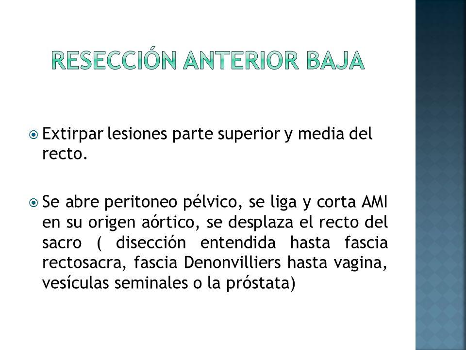 Extirpar lesiones parte superior y media del recto. Se abre peritoneo pélvico, se liga y corta AMI en su origen aórtico, se desplaza el recto del sacr