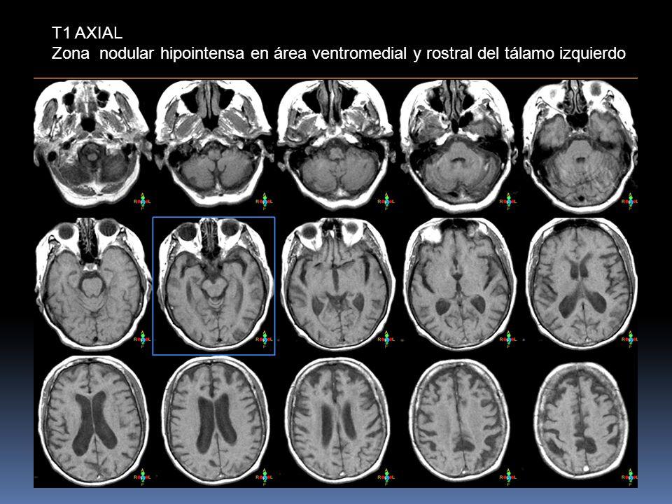 T1 AXIAL Zona nodular hipointensa en área ventromedial y rostral del tálamo izquierdo
