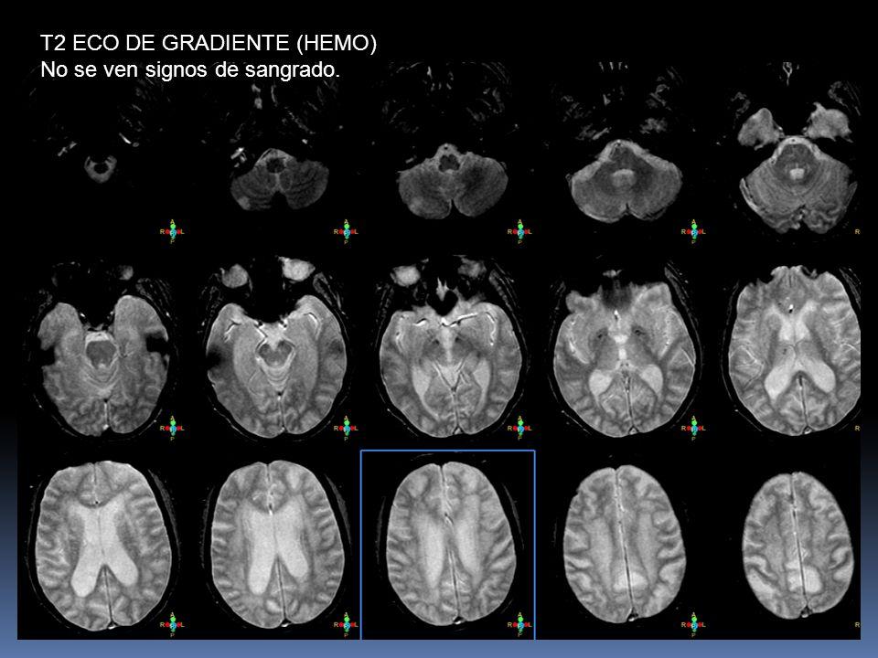 T2 ECO DE GRADIENTE (HEMO) No se ven signos de sangrado.