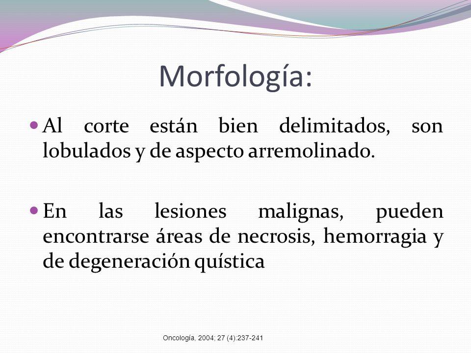 Morfología: Al corte están bien delimitados, son lobulados y de aspecto arremolinado. En las lesiones malignas, pueden encontrarse áreas de necrosis,