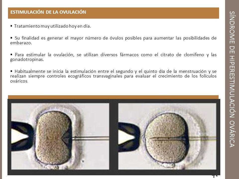 ESTIMULACIÓN DE LA OVULACIÓN Tratamiento muy utilizado hoy en día. Su finalidad es generar el mayor número de óvulos posibles para aumentar las posibi