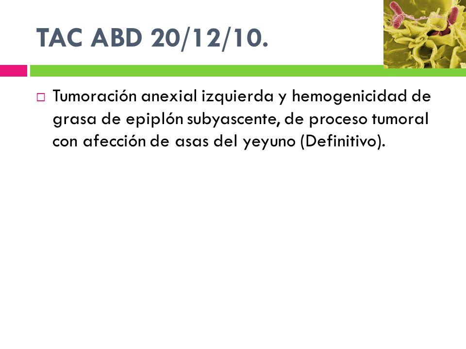 TAC ABD 20/12/10. Tumoración anexial izquierda y hemogenicidad de grasa de epiplón subyascente, de proceso tumoral con afección de asas del yeyuno (De