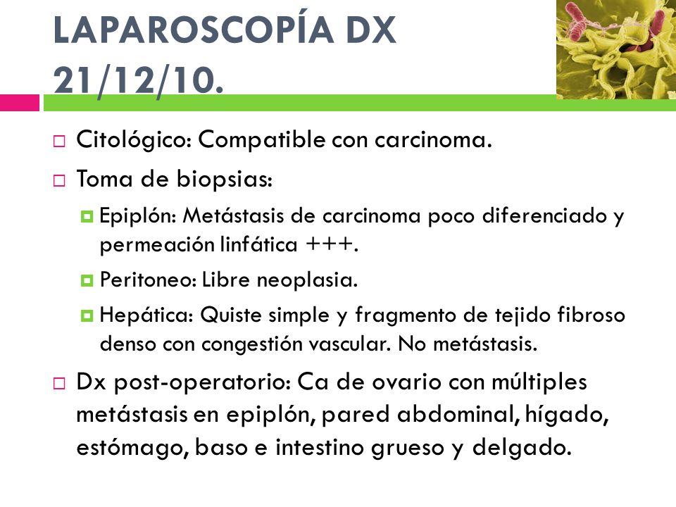 LAPAROSCOPÍA DX 21/12/10. Citológico: Compatible con carcinoma. Toma de biopsias: Epiplón: Metástasis de carcinoma poco diferenciado y permeación linf