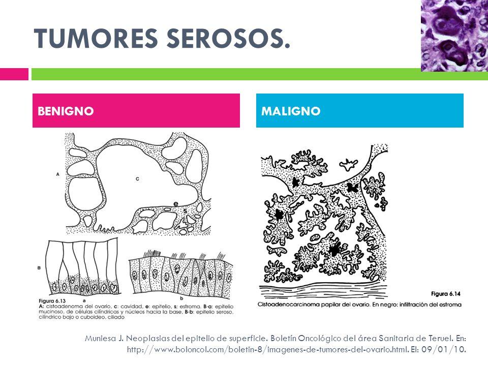 TUMORES SEROSOS. BENIGNOMALIGNO Muniesa J. Neoplasias del epitelio de superficie. Boletín Oncológico del área Sanitaria de Teruel. En: http://www.bolo