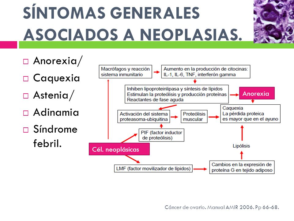 SÍNTOMAS GENERALES ASOCIADOS A NEOPLASIAS. Anorexia/ Caquexia Astenia/ Adinamia Síndrome febril. Cél. neoplásicas Anorexia Cáncer de ovario. Manual AM