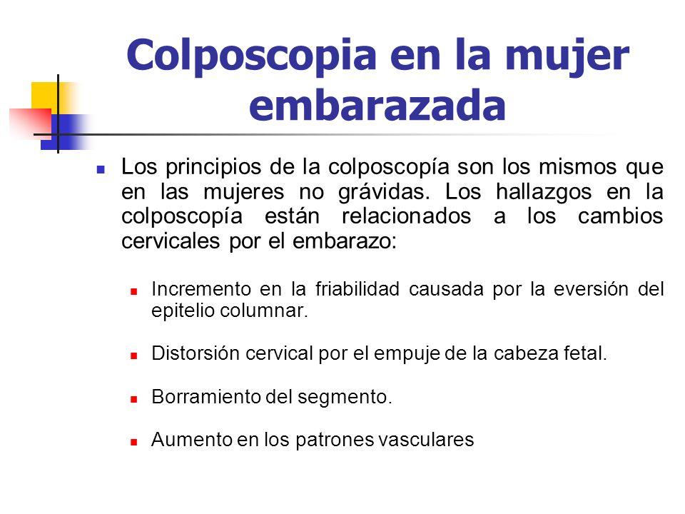 Colposcopia en la mujer embarazada Los principios de la colposcopía son los mismos que en las mujeres no grávidas. Los hallazgos en la colposcopía est