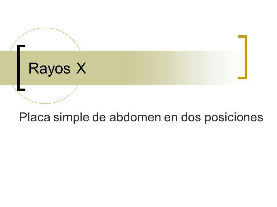 Rayos X Placa simple de abdomen en dos posiciones