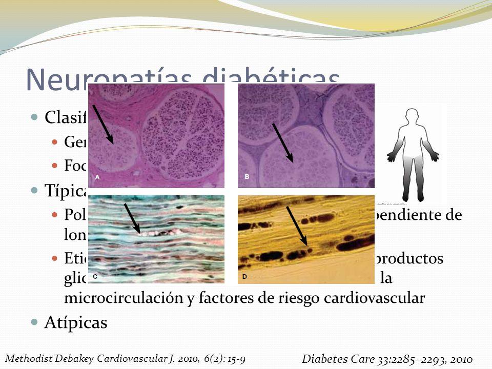 Neuropatías diabéticas Clasificación Generalizadas Focal/Multifocal Típica Polineuropatía crónica, simétrica, mixta, dependiente de longitud Etiología