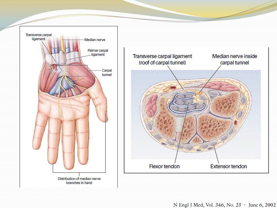 Síndrome del túnel del carpo Etiología Elevación de la presión en el túnel del carpo Isquemia del nervio mediano Clínica Parestesias, dolor en cara palmar de 1ro a 3er dedos y porción radial del 4to dedo Inicialmente intermitentes, sin cambios morfológicos del nervio mediano Crónico: Debilidad, desmielinizacion segmentaria del nervio mediano, irreversible