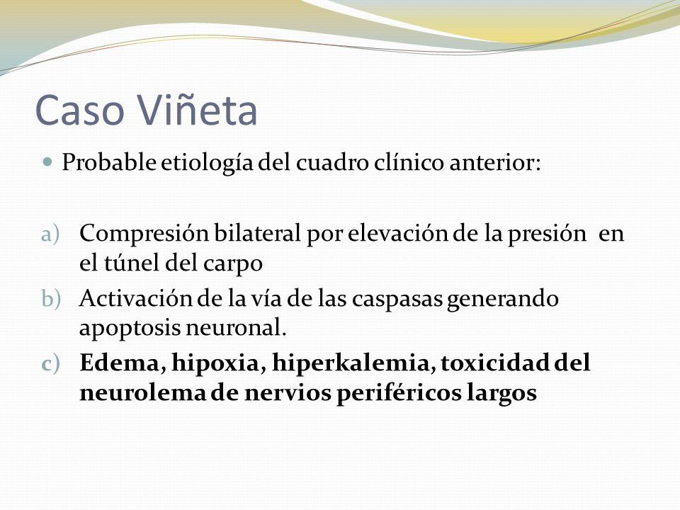Caso Viñeta Probable etiología del cuadro clínico anterior: a) Compresión bilateral por elevación de la presión en el túnel del carpo b) Activación de