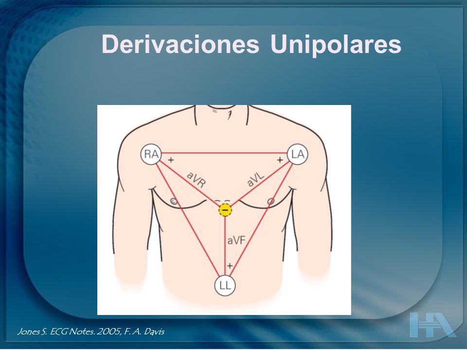 Derivaciones Unipolares Jones S. ECG Notes. 2005, F. A. Davis
