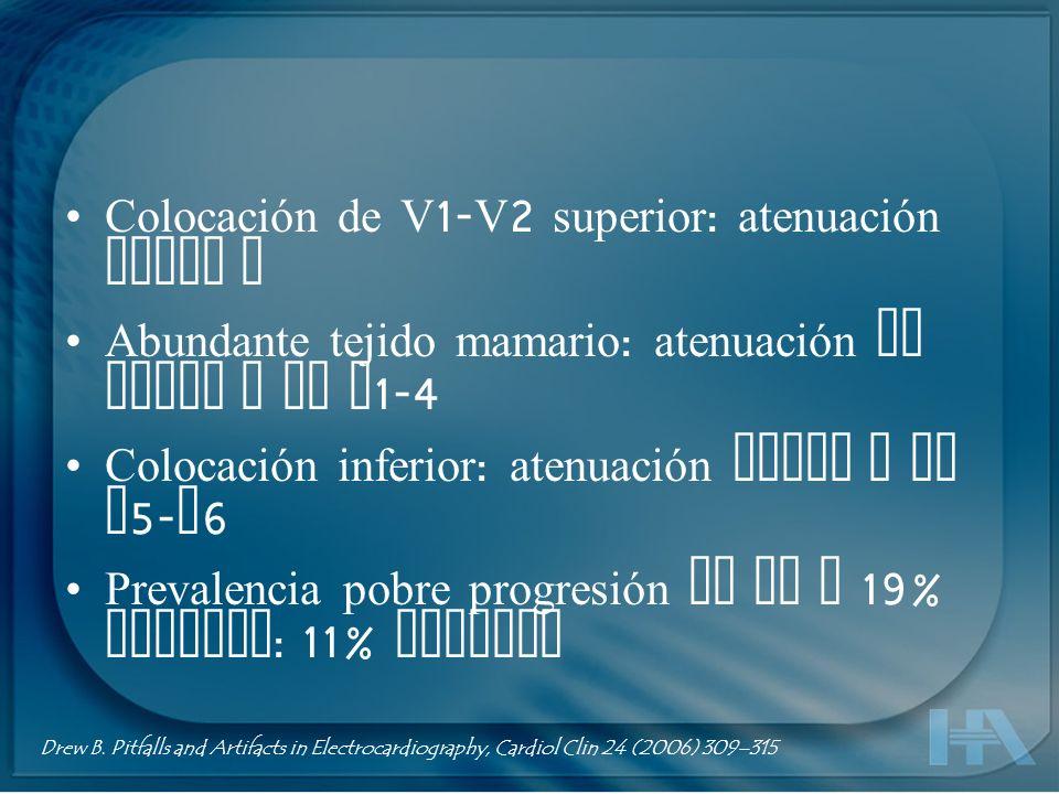 Colocación de V 1- V 2 superior : atenuación ondas R Abundante tejido mamario : atenuación de ondas R de V 1-4 Colocación inferior : atenuación ondas