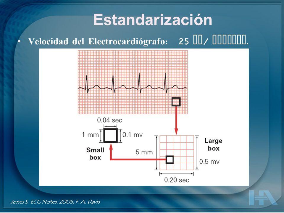 Estandarización Velocidad del Electrocardiógrafo : 25 mm / Segundo. Jones S. ECG Notes. 2005, F. A. Davis