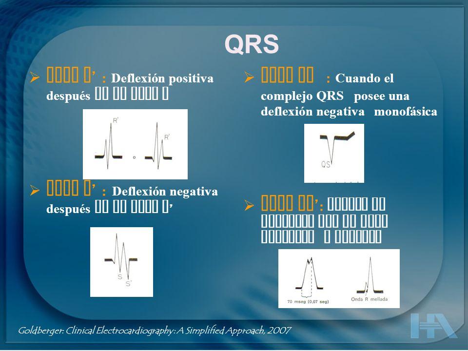 QRS Onda QS : Cuando el complejo QRS posee una deflexión negativa monofásica Onda RR : Cuando el complejo QRS es todo positivo y mellado Onda R : Defl