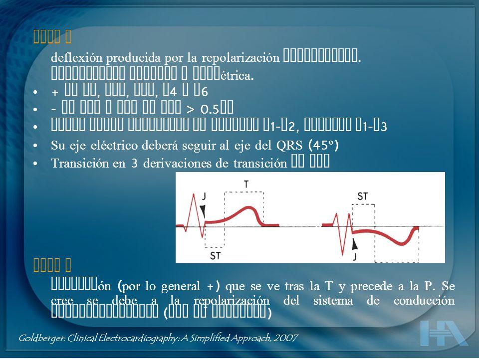 Onda T deflexión producida por la repolarización ventricular. Normalmente redonda y asimétrica. + en DI, DII, AVF, V 4 a V 6 - en aVR y aVL si QRS > 0