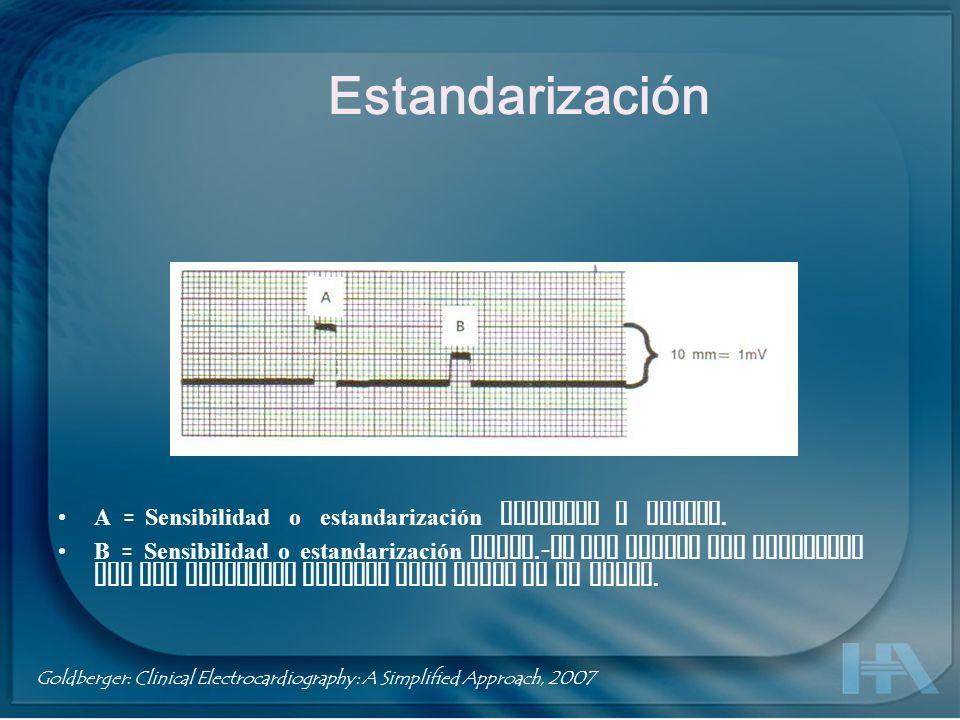 A = Sensibilidad o estandarización completa o normal. B = Sensibilidad o estandarización media.- Se usa cuando los complejos QRS son demasiado grandes