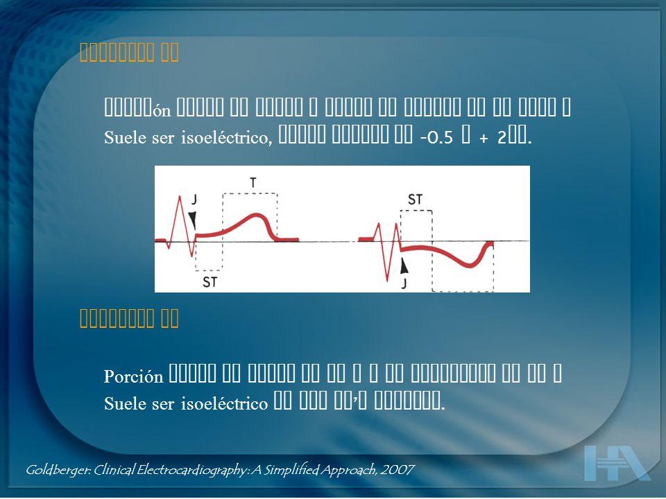 Segmento ST Porción entre el punto J hasta el inicio de la onda T Suele ser isoeléctrico, puede variar de -0.5 a + 2 mm. Segmento TP Porción entre el