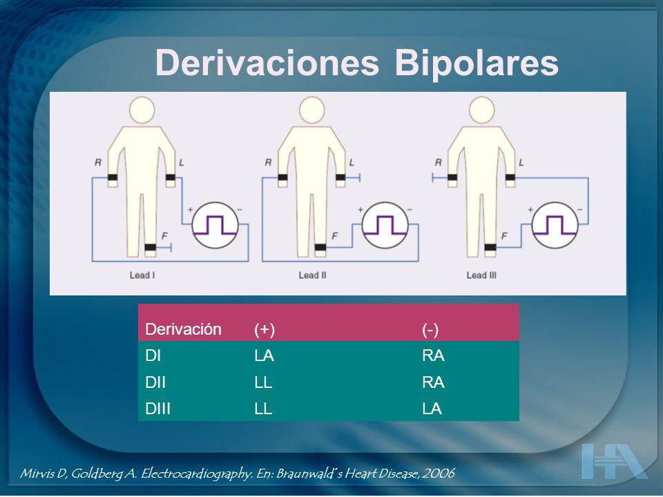 Derivaciones Bipolares Derivación(+)(-) DILARA DIILLRA DIIILLLA Mirvis D, Goldberg A. Electrocardiography. En: Braunwald´s Heart Disease, 2006