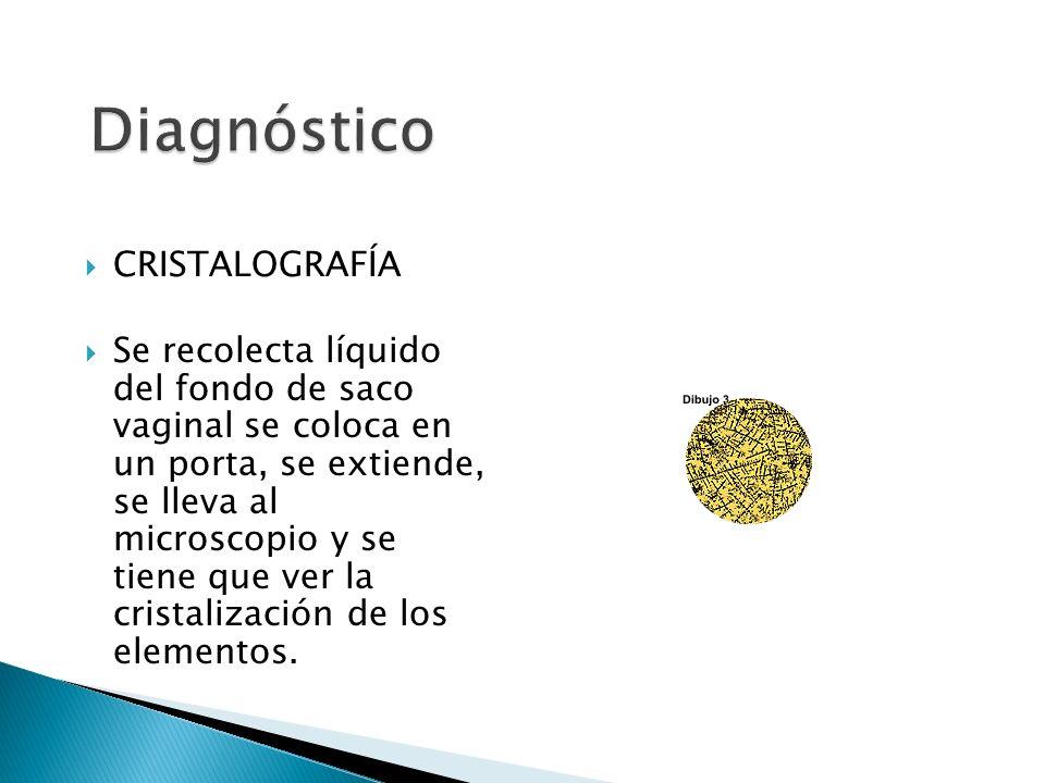 CRISTALOGRAFÍA Se recolecta líquido del fondo de saco vaginal se coloca en un porta, se extiende, se lleva al microscopio y se tiene que ver la cristalización de los elementos.