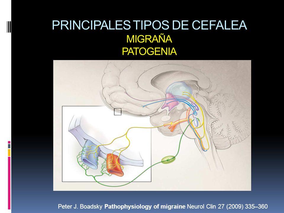 PRINCIPALES TIPOS DE CEFALEA MIGRAÑA PATOGENIA Peter J. Boadsky Pathophysiology of migraine Neurol Clin 27 (2009) 335–360