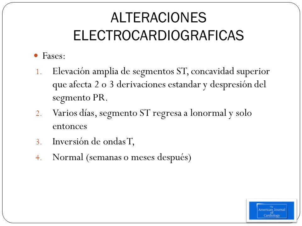 ALTERACIONES ELECTROCARDIOGRAFICAS Fases: 1. Elevación amplia de segmentos ST, concavidad superior que afecta 2 o 3 derivaciones estandar y despresión