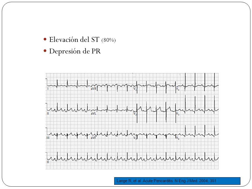 Elevación del ST (80%) Depresión de PR Lange R, et al. Acute Pericarditis. N Eng J Med. 2004; 351