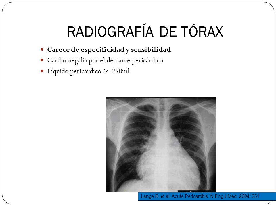 RADIOGRAFÍA DE TÓRAX Carece de especificidad y sensibilidad Cardiomegalia por el derrame pericárdico Líquido pericardico > 250ml Lange R, et al. Acute