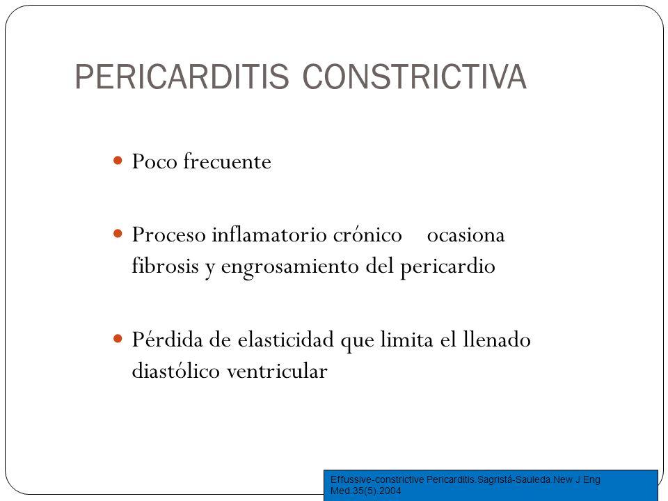PERICARDITIS CONSTRICTIVA Poco frecuente Proceso inflamatorio crónico ocasiona fibrosis y engrosamiento del pericardio Pérdida de elasticidad que limi