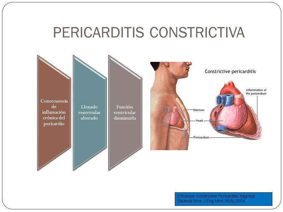 PERICARDITIS CONSTRICTIVA Consecuencia de inflamación crónica del pericardio Llenado ventricular alterado Función ventricular disminuida Effussive-con