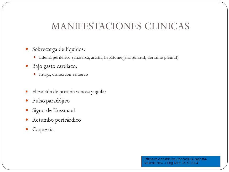 MANIFESTACIONES CLINICAS Sobrecarga de líquidos: Edema periférico (anasarca, ascitis, hepatomegalia pulsátil, derrame pleural) Bajo gasto cardiaco: Fa
