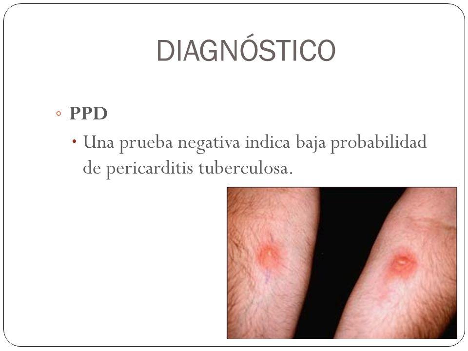 DIAGNÓSTICO PPD Una prueba negativa indica baja probabilidad de pericarditis tuberculosa.