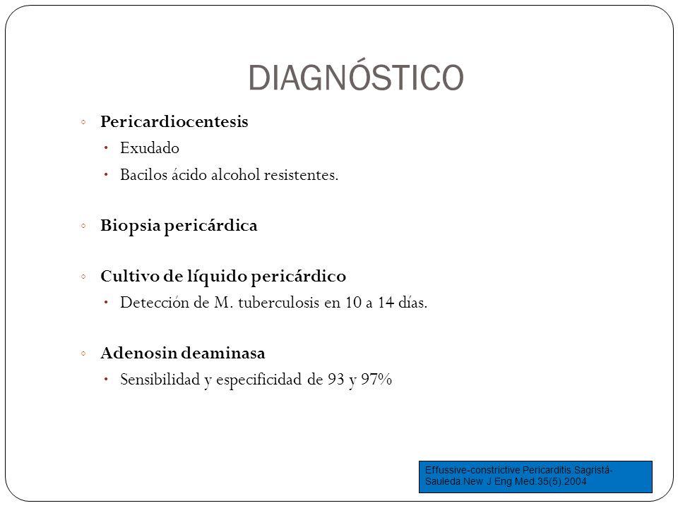 DIAGNÓSTICO Pericardiocentesis Exudado Bacilos ácido alcohol resistentes. Biopsia pericárdica Cultivo de líquido pericárdico Detección de M. tuberculo