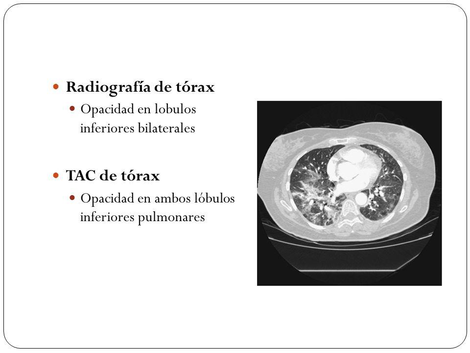 Radiografía de tórax Opacidad en lobulos inferiores bilaterales TAC de tórax Opacidad en ambos lóbulos inferiores pulmonares
