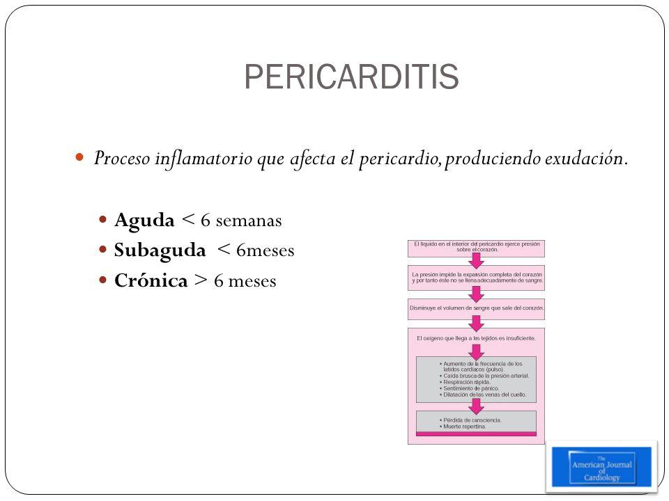 PERICARDITIS Proceso inflamatorio que afecta el pericardio, produciendo exudación. Aguda < 6 semanas Subaguda < 6meses Crónica > 6 meses