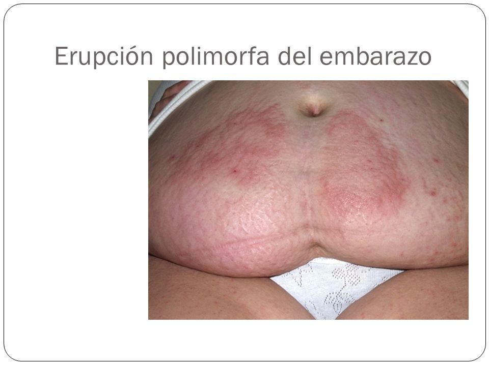 Erupción polimorfa del embarazo
