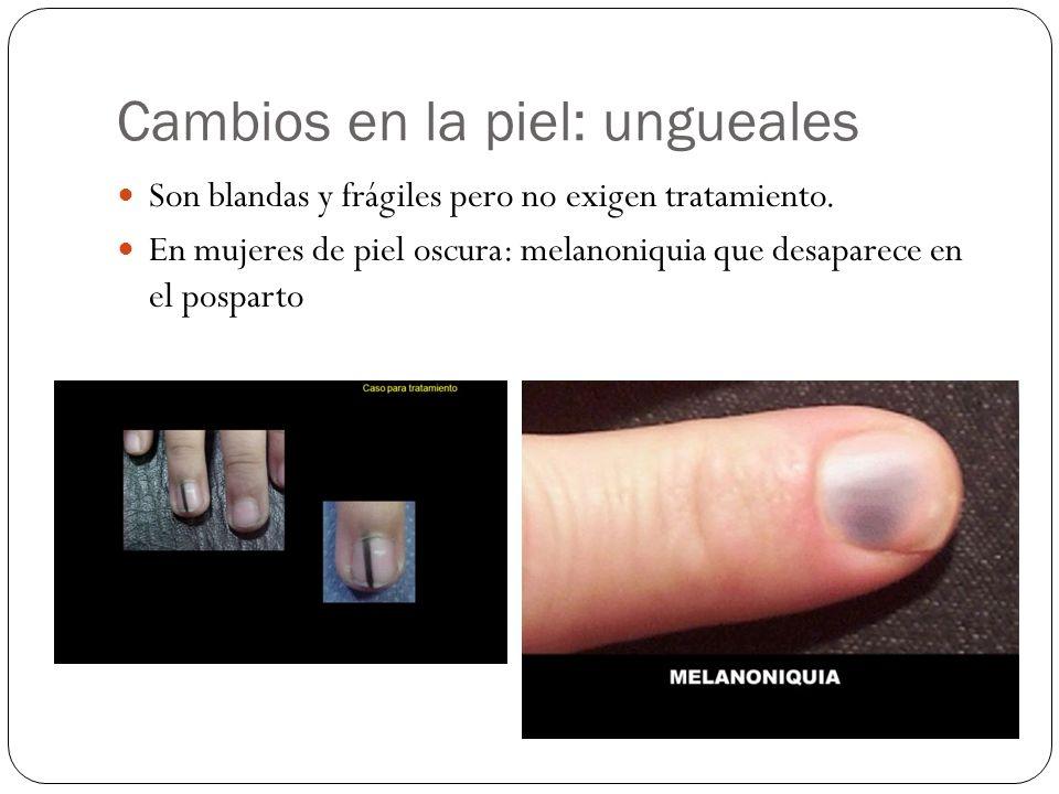 Cambios en la piel: ungueales Son blandas y frágiles pero no exigen tratamiento. En mujeres de piel oscura: melanoniquia que desaparece en el posparto