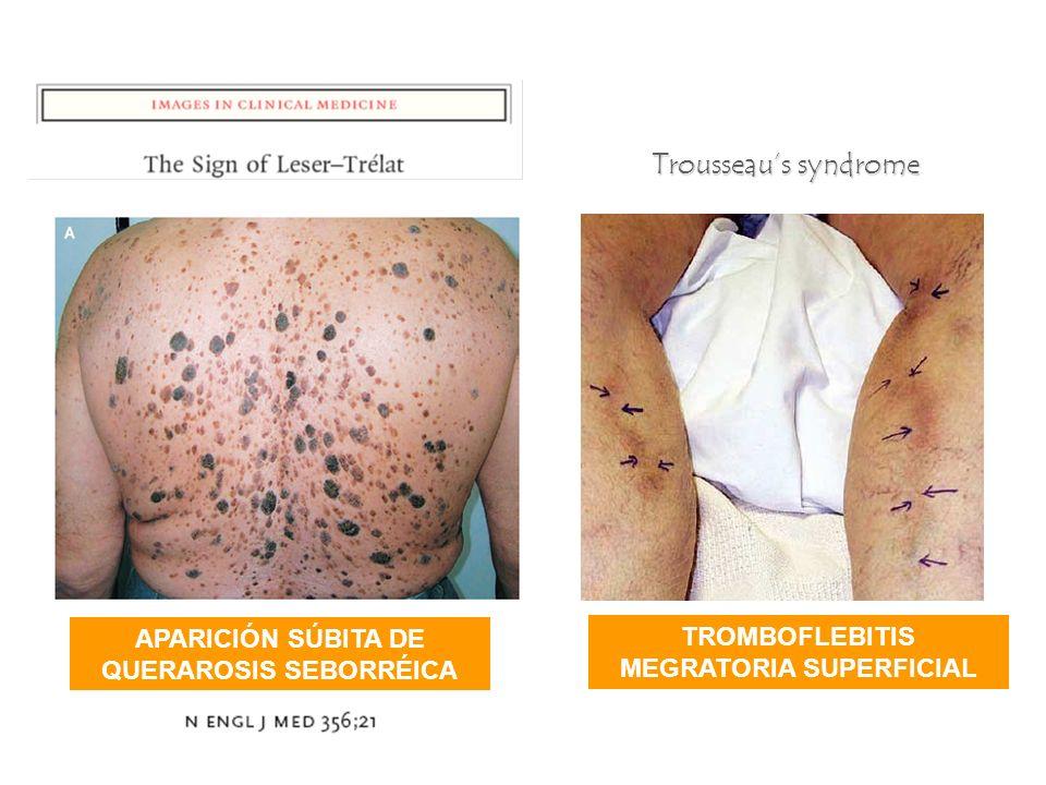 APARICIÓN SÚBITA DE QUERAROSIS SEBORRÉICA Trousseaus syndrome TROMBOFLEBITIS MEGRATORIA SUPERFICIAL