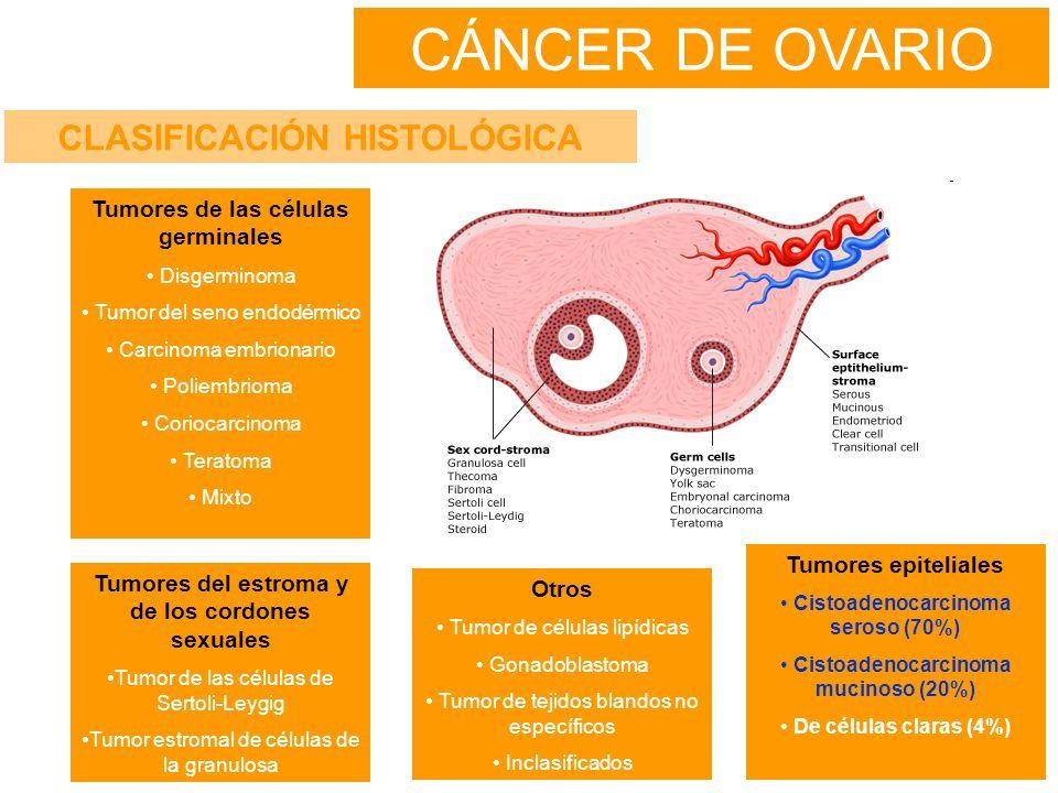 CÁNCER DE OVARIO CLASIFICACIÓN HISTOLÓGICA Tumores epiteliales Cistoadenocarcinoma seroso (70%) Cistoadenocarcinoma mucinoso (20%) De células claras (