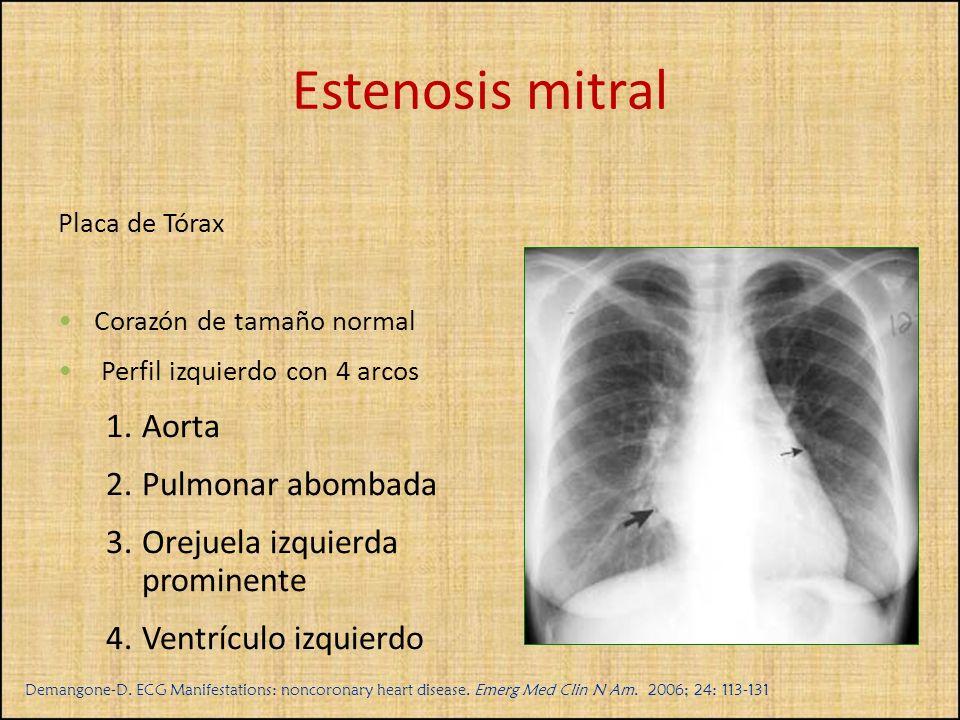 Placa de Tórax Corazón de tamaño normal Perfil izquierdo con 4 arcos 1.Aorta 2.Pulmonar abombada 3.Orejuela izquierda prominente 4.Ventrículo izquierd