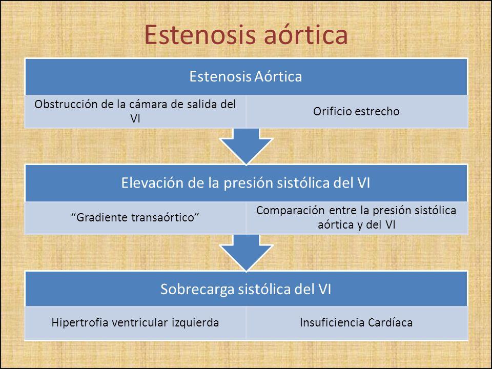 Estenosis aórtica Sobrecarga sistólica del VI Hipertrofia ventricular izquierdaInsuficiencia Cardíaca Elevación de la presión sistólica del VI Gradien