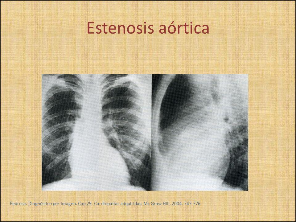 Pedrosa. Diagnóstico por Imagen. Cap 29. Cardiopatías adquiridas. Mc Graw Hill. 2004. 747-776 Estenosis aórtica