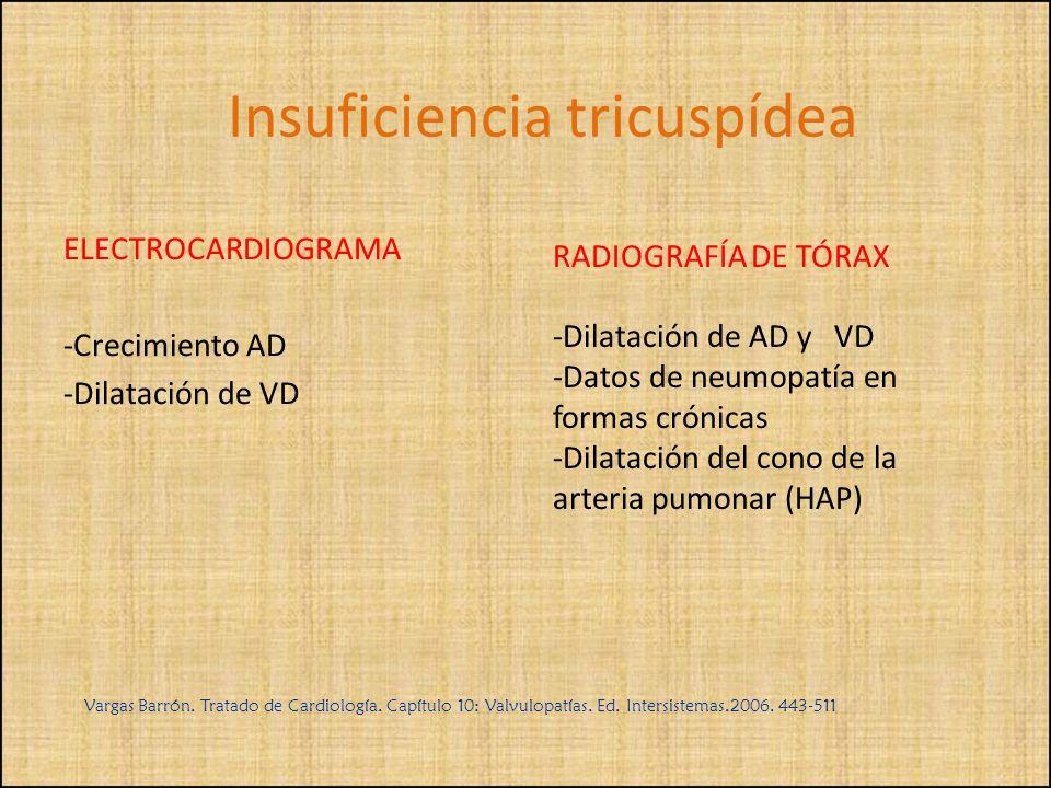 ELECTROCARDIOGRAMA -Crecimiento AD -Dilatación de VD RADIOGRAFÍA DE TÓRAX -Dilatación de AD y VD -Datos de neumopatía en formas crónicas -Dilatación d
