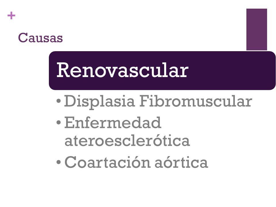 + Causas Renovascular Displasia Fibromuscular Enfermedad ateroesclerótica Coartación aórtica