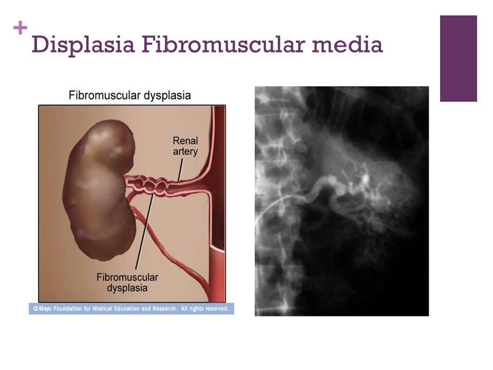 + Displasia Fibromuscular media