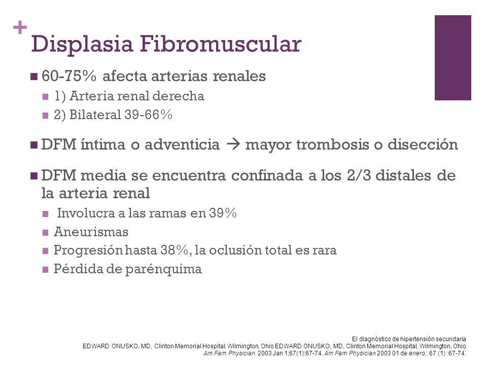 + Displasia Fibromuscular 60-75% afecta arterias renales 1) Arteria renal derecha 2) Bilateral 39-66% DFM íntima o adventicia mayor trombosis o disecc