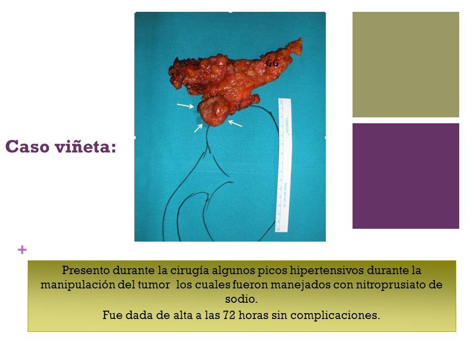 + Caso viñeta: Presento durante la cirugía algunos picos hipertensivos durante la manipulación del tumor los cuales fueron manejados con nitroprusiato