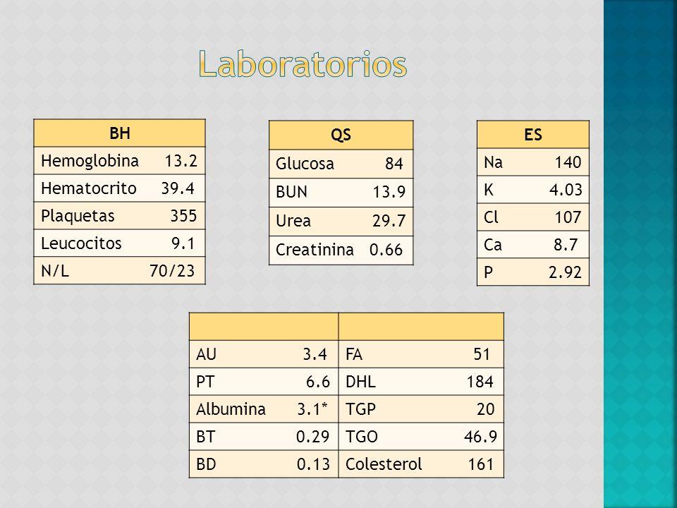 BH Hemoglobina 13.2 Hematocrito 39.4 Plaquetas 355 Leucocitos 9.1 N/L 70/23 QS Glucosa 84 BUN 13.9 Urea 29.7 Creatinina 0.66 ES Na 140 K 4.03 Cl 107 C