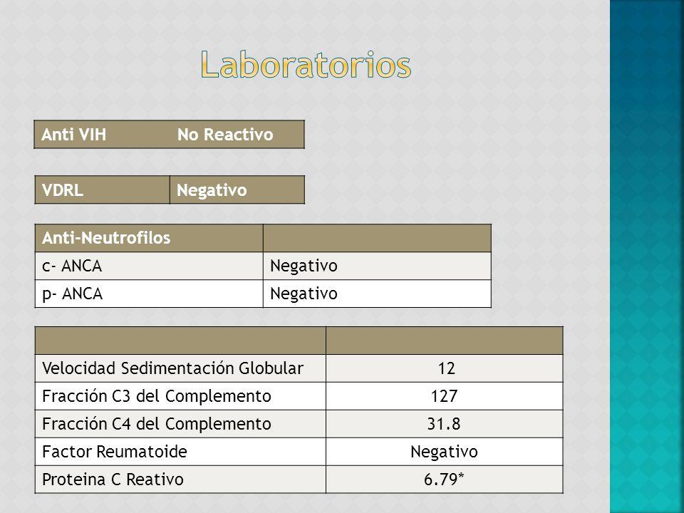Anti VIH No Reactivo Anti-Neutrofilos c- ANCANegativo p- ANCANegativo VDRLNegativo Velocidad Sedimentación Globular 12 Fracción C3 del Complemento127